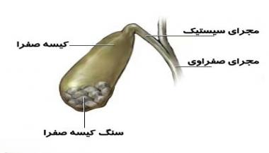 التهاب کیسه صفرا یا کوله سیستیت