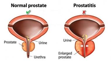 التهاب پروستات یا پروستاتیت