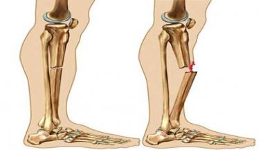 شکستگی یا دررفتگی استخوان ها