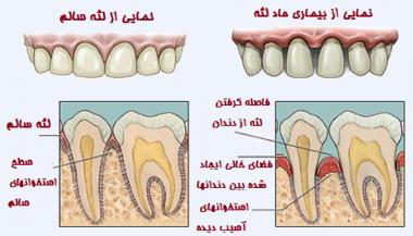 بیماری های لثه و دندان