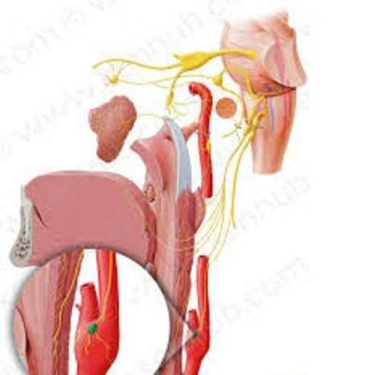 کاهش فشار خون با برداشتن جسم کاروتید
