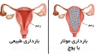 حاملگی نابجا یا خارج رحمی