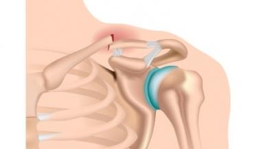 دررفتگی مفصل