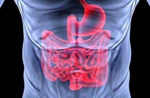 نرخ ابتلا به سرطان مقعد در دنیا افزایش یافته است