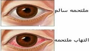 کنژنکتیویت یا التهاب ملتحمه