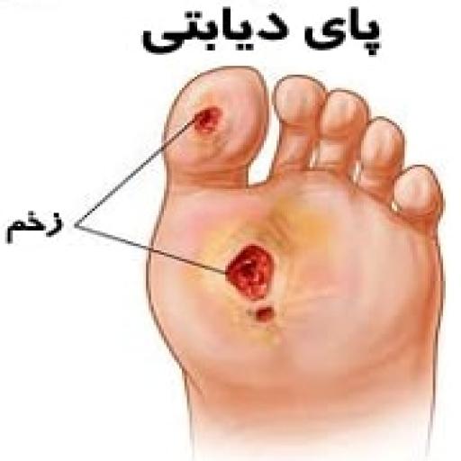 زخم پا در دیابتی ها جدی است