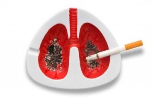 نقش سیگار و آلودگی هوا در بروز سرطان ریه