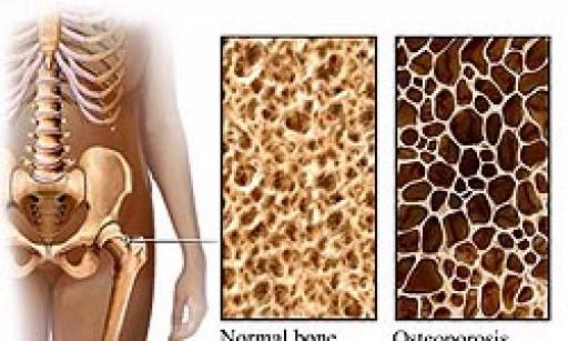 پوکی استخوان شایعترین بیماری دوران سالمندی/ عوامل بروز پوکی استخوان را بشناسید