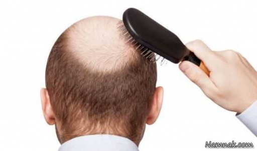 توجیه علمی برای ریزش دائمی موها!