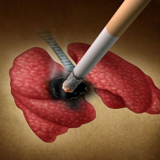 ۸۰درصدمبتلایان به سرطان ریه سیگاری هستند