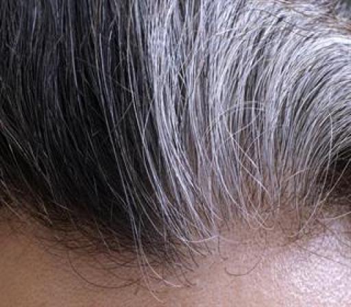 تغییر ظاهر موها، خبر از کدام بیماری ها می دهد؟