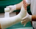 یک سوم زنان بالای۵۰ سال شکستگی ناشی ازپوکی استخوان را تجربه می کنند