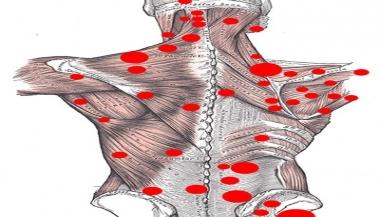 پارگی یا کشیدگی عضله