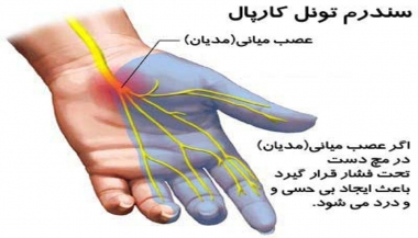 سندرم تونل کارپ یا مجرای مچ دستی